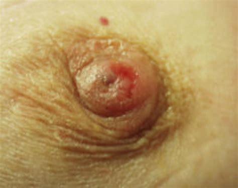 breast rash  leaking jpg 1024x814