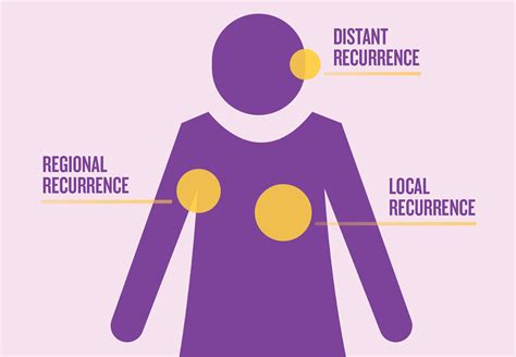 Breast cancer recurrence rates, prognosis, risk, detection png 1280x887